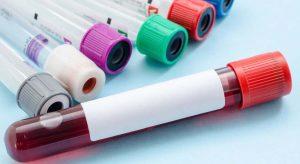 فوبیای خون چیست؟ ترسی به رنگ خون